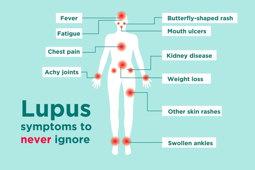 What Are The Best Treatments Available For Lupus  - Wloger